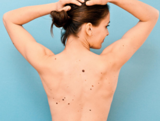 Skin cancer signs and risk factors