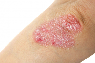 What is the cure for psoriasis